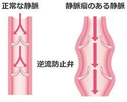 足のムクミ 静脈弁の状態